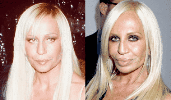 Plastic Surgery Gone Bad and The Versace Approach